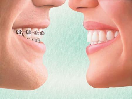Mascherine trasparenti per apparecchi a prova di sorriso